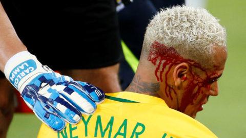 Neymar bakom segern - utbytt blodig