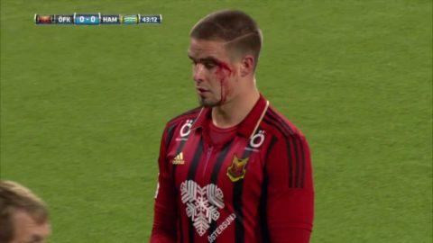 Östersund-spelare blodig efter duell